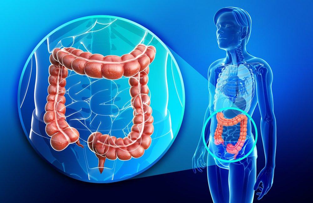 Wczesne wykrywanie raka jelita grubego