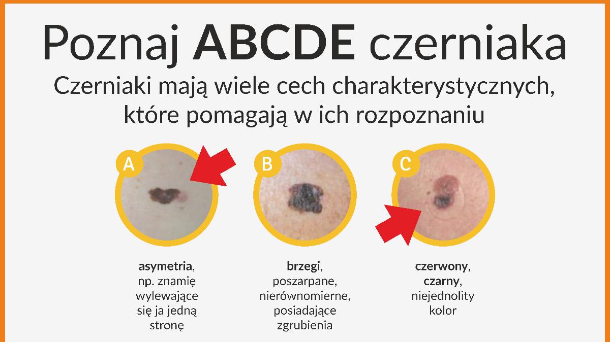 na zdjęciu: ulotka ABCDE czerniaka